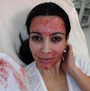 Kim K's vampire facial